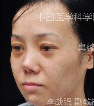 李战强隆鼻修复案例:隆鼻假体穿出后修复