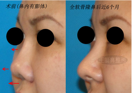 鼻修复案例