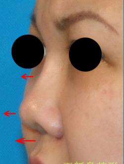 王艇鼻修复案例:修复短小的膨体隆鼻
