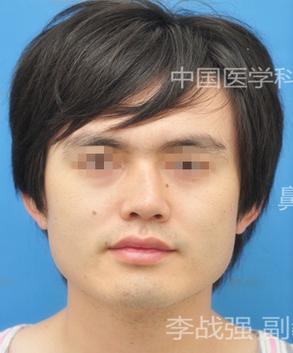 李战强鼻修复案例:歪鼻矫正