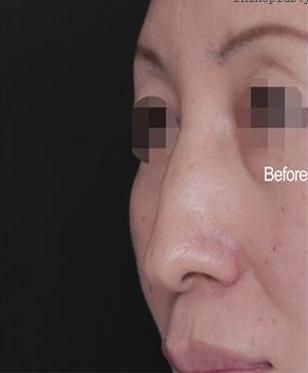 刘彦军鼻修复案例:宽鼻缩窄手术