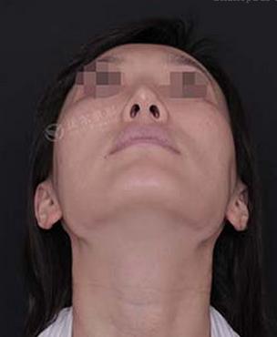刘彦军鼻修复案例:硅胶隆鼻取出