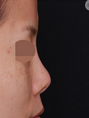 刘彦军鼻修复案例:硅胶隆鼻失败修复
