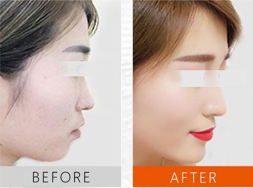 鼻部修复案例