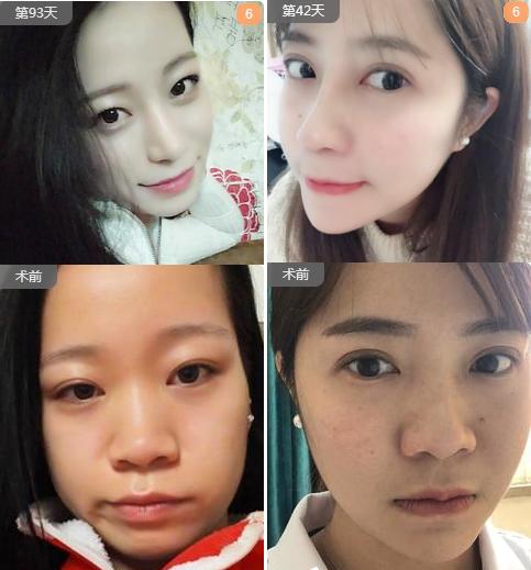 蒋思军隆鼻案例