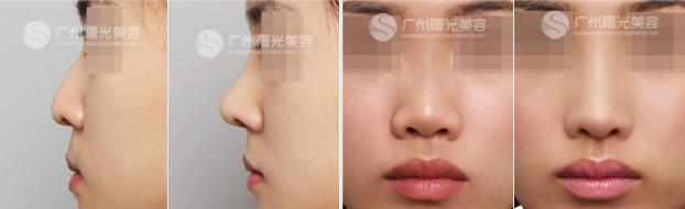 刘杰伟隆鼻案例