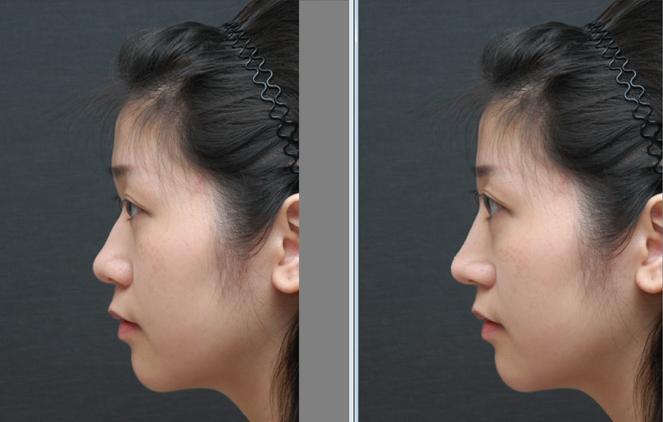 为何隆鼻手术会失败?隆鼻&鼻部整形失败的原因是什么?