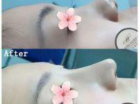 成都鼻综合和鼻修复最好的专家排名 刘全贾德渊吴开泉周柯怎么样?